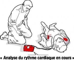 Défibrillateur8